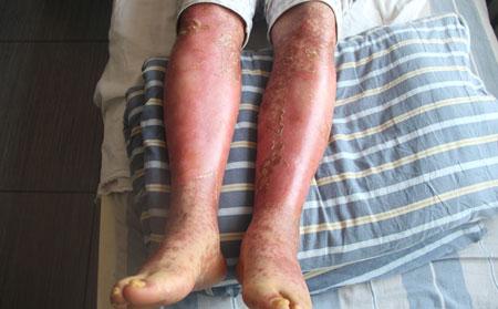 牛皮癣患者们该怎样护理皮肤