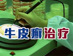 中医治疗牛皮癣的优势有哪些