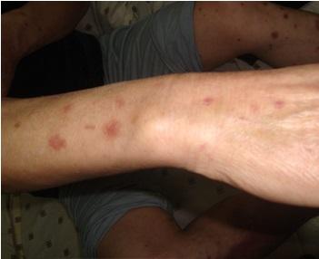 手臂牛皮癣如何治疗最好