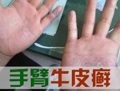 手部牛皮癣要如何护理