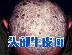 头皮癣症状的图片?