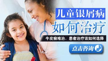 治疗儿童牛皮癣的方法