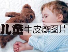 怎样正确诊断儿童牛皮癣