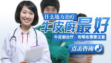 四川牛皮癣治疗医院
